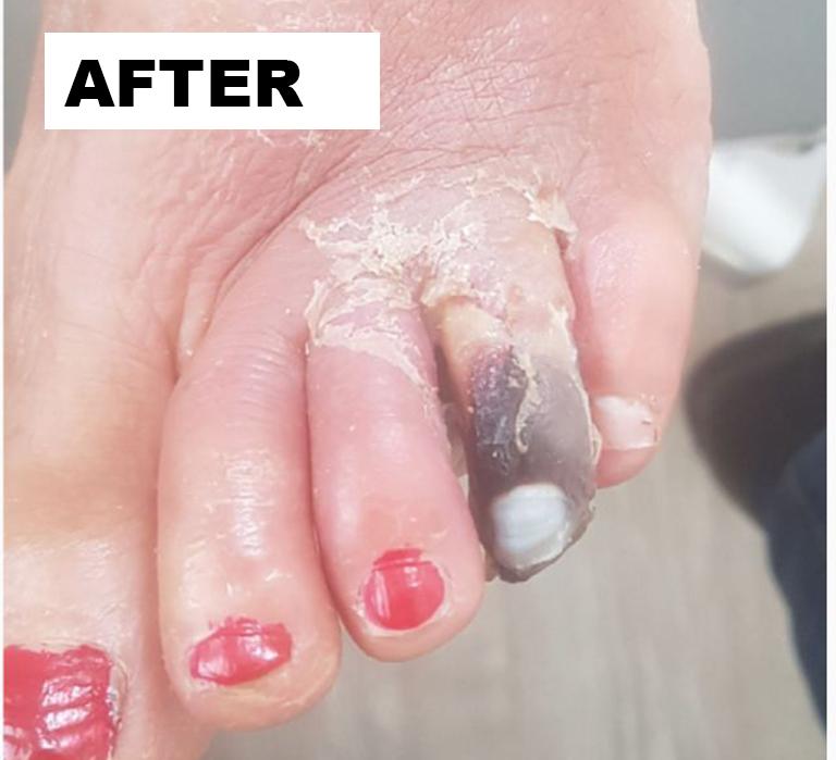 feet-after